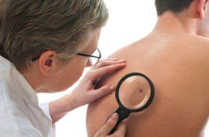 Em Goiânia, a ação promovida pela SBD-GO vai contar com cerca de 40 dermatologistas voluntários