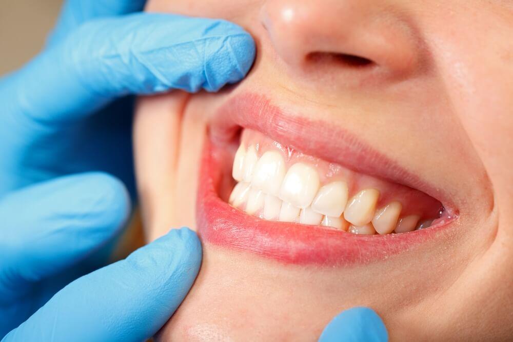 cirurgia-gengival-tire-suas-principais-duvidas-blog-dentcare-center.jpg